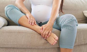 Κατακράτηση υγρών στην εγκυμοσύνη: 7 tips για να την καταπολεμήσετε