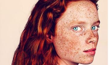 Φωτογράφος μέσα από υπέροχα πορτρέτα ανθρώπων με φακίδες αναδεικνύει τη μοναδική ομορφιά τους (pics)