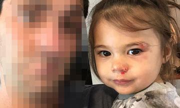 Η κόρη του έπεσε και χτύπησε στο πρόσωπο - Το μήνυμα του γνωστού παρουσιαστή στο Instagram
