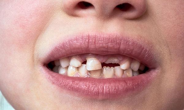 Παιδικά δόντια που αργούν να πέσουν - Τι πρέπει να γνωρίζουν οι γονείς