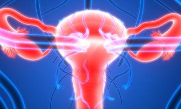 Σύνδρομο πολυκυστικών ωοθηκών: Για ποιες ψυχικές παθήσεις αυξάνει τον κίνδυνο