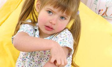 Εξάνθημα στα παιδιά: Τι πρέπει να γνωρίζουμε για τις «καντήλες»