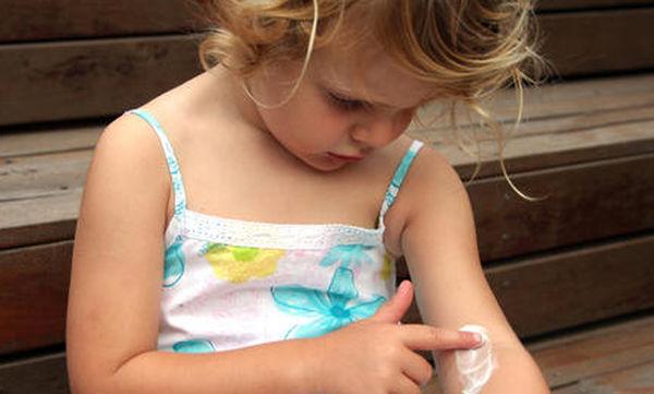 Εννέα πράγµατα που πρέπει να ξέρετε για το παιδικό έκζεµα