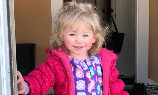 Αλλεργία στο νερό: Κι όμως αυτό το κοριτσάκι είναι αλλεργικό στο νερό (pics)
