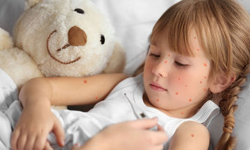Κόλλησε το παιδί σας ανεμοβλογιά; Τι πρέπει να γνωρίζετε
