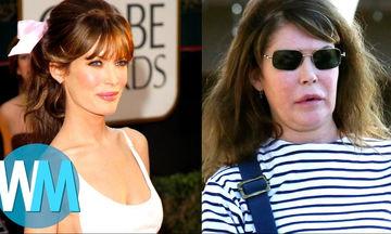 Δέκα celebrities που δεν μπόρεσαν να αντισταθούν στις πλαστικές και άλλαξαν τελείως (vid)