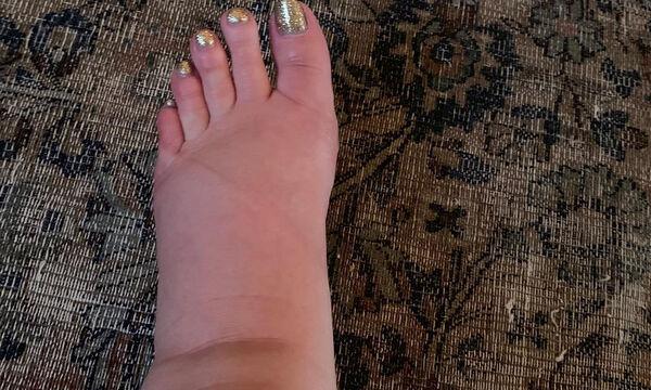 Εγκυμονούσα διάσημη μαμά ζητά βοήθεια για τα πρησμένα της πόδια (pics)
