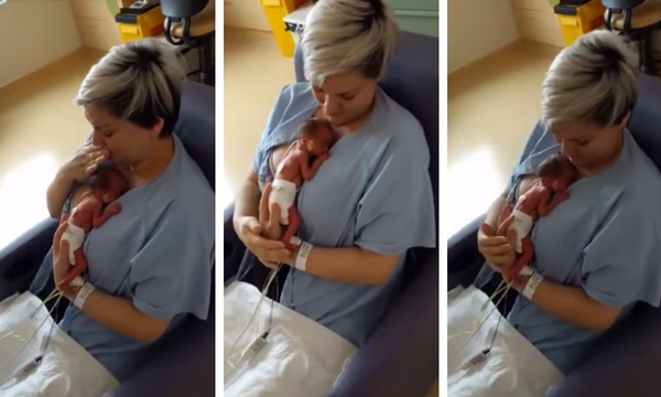 Μαμά κρατά για πρώτη φορά αγκαλιά το πρόωρο μωρό της (vid)