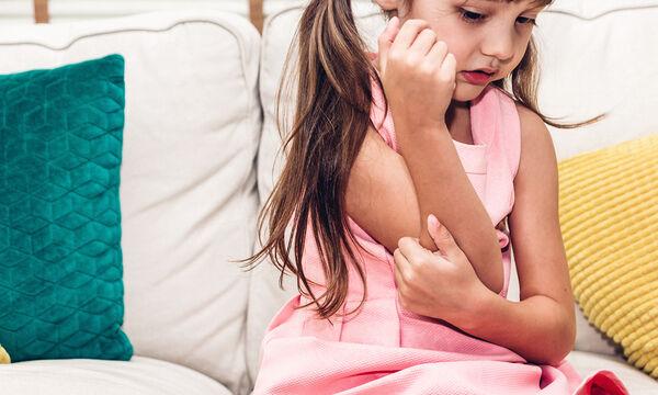 Ατοπική δερματίτιδα - Έκζεμα: όλα όσα πρέπει να γνωρίζουν οι γονείς σε ένα άρθρο
