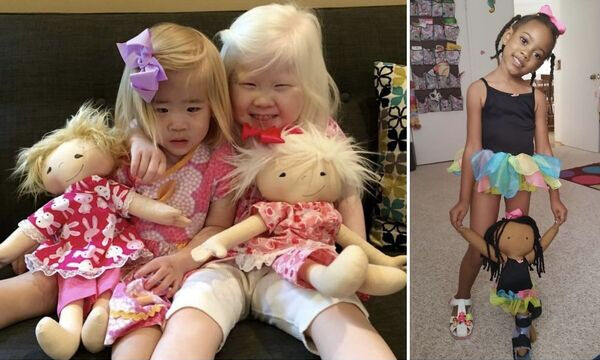 «Μια κούκλα σαν εμένα»:  Ξεχωριστές κούκλες για παιδιά με αναπηρίες (vid+pics)