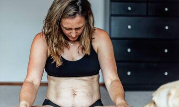 Αν ντρέπεστε να δείξετε το σώμα σας μετά τον τοκετό, τότε πρέπει να δείτε αυτές τις φωτογραφίες