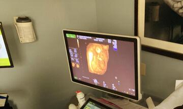 Είναι έγκυος για δεύτερη φορά και το ανακοίνωσε με αυτή τη φωτογραφία (pic)