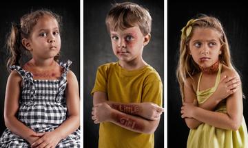 Η λεκτική βία αφήνει σημάδια - 22 συγκλονιστικές φωτογραφίες (pics)