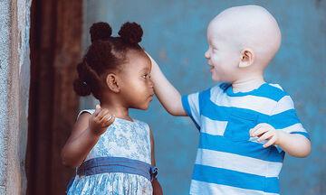 «Αγάπη είναι…» - Έντεκα φωτογραφίες που μαρτυρούν το μεγαλείο αυτού του συναισθήματος (pics)