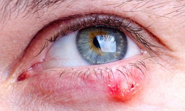 Κριθαράκι στο μάτι: 4 φυσικές θεραπείες αντιμετώπισης (εικόνες)