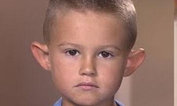 Δεχόταν bullying από τους συμμαθητές του για τα αυτιά του - Δείτε τι έκανε (vid)