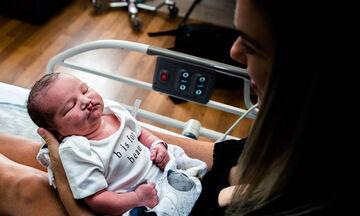 Η τρυφερή φωτογραφία αυτού μωρού με λαγόχειλο κάνει το γύρο του διαδικτύου (pics)