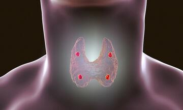 Θυρεοειδής: 13 συμπτώματα που «δείχνουν» πρόβλημα (εικόνες)