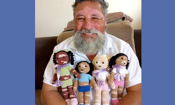 Παππούς που πάσχει από λεύκη δημιουργεί τις πιο εντυπωσιακές κούκλες για ομοιοπαθή παιδιά (pics)