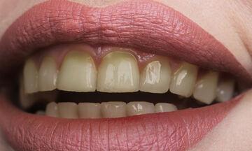 Δόντια που κιτρινίζουν: Οι τροφές που πρέπει να αποφεύγετε (εικόνες)