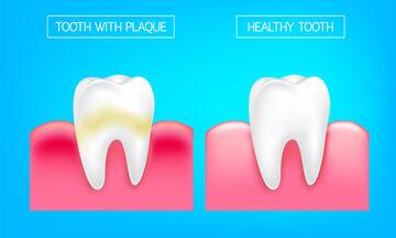 Πλάκα στα δόντια: 10 φυσικοί τρόποι να την απομακρύνετε (βίντεο)