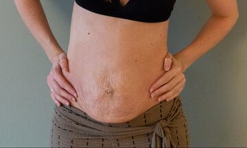 Μαμά δείχνει πώς είναι η κοιλιά της 16, 5 μήνες μετά τη γέννα και στέλνει το δικό της μήνυμα (pics)