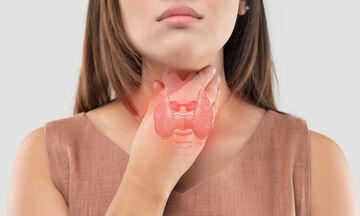 Όζοι στον θυρεοειδή: Ποια είναι τα συμπτώματα (εικόνες)