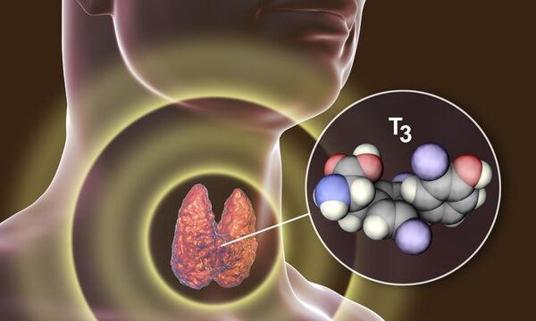 Θυρεοειδίτιδα Χασιμότο: Με ποια συμπτώματα εκδηλώνεται (εικόνες)