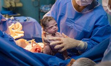 Αυτό το μωράκι έγινε viral γιατί γεννήθηκε… θυμωμένο (pics)