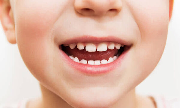 Πού υπερέχει η παιδική ηλεκτρική οδοντόβουρτσα;