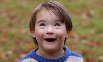 Απίθανες φωτογραφίες παιδιών με Σύνδρομο Down αποδεικνύουν πόσο υπέροχα είναι (pics)