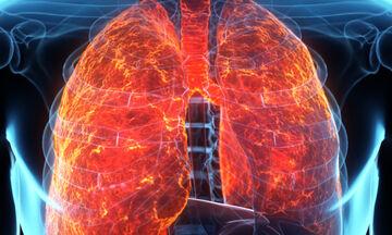 Υγρό στους πνεύμονες: Τα ανησυχητικά συμπτώματα (εικόνες)