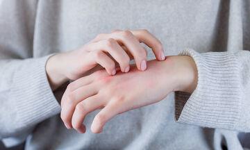 Κορονοϊός: Πώς συνδέεται με την ατοπική δερματίτιδα;