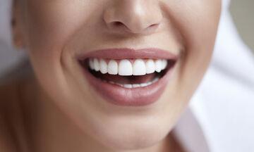 Οκτώ σπιτικά tips για λευκά δόντια (pics)