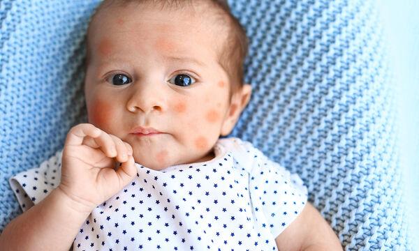 Τροφική αλλεργία στα παιδιά: Τι πρέπει να γνωρίζει κάθε γονιός