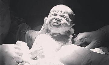 Μωράκια βγαίνουν από την κοιλιά της μαμάς τους - Συγκλονιστικές φωτογραφίες