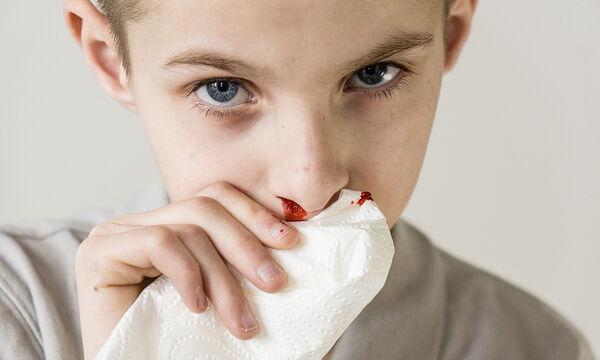 Γιατί «ανοίγει» η μύτη του παιδιού συχνά το καλοκαίρι;