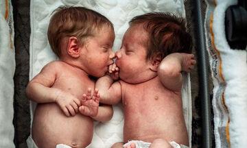 Αυτή η φωτογραφία των δίδυμων μωρών με το χέρι στο στόμα έγινε viral