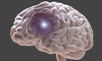 Ανεύρυσμα εγκεφάλου: Με ποια συμπτώματα εκδηλώνεται (εικόνες)