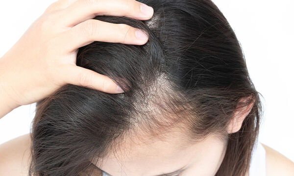Αραίωση μαλλιών: Ποιες είναι οι πιθανές αιτίες (εικόνες)