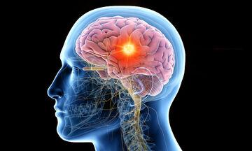 Όγκος στον εγκέφαλο: 7 προειδοποιητικά σημάδια που πρέπει να ξέρετε (βίντεο)