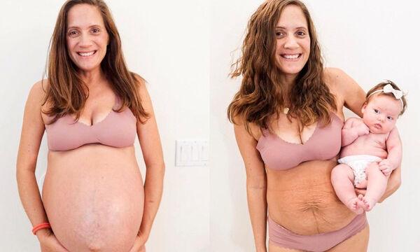 Πριν και μετά: Μαμά ποζάρει μετά τον τοκετό και στέλνει το δικό της μήνυμα