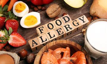 Τροφικές αλλεργίες: Τα συμπτώματα που δεν πρέπει να αγνοείτε (εικόνες)