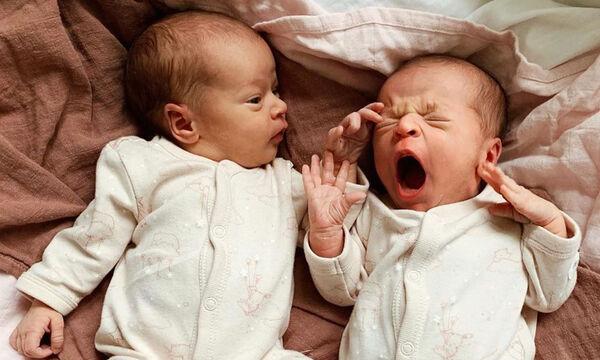 Αυτά τα δίδυμα μωράκια θα τα αγαπήσετε (pics)