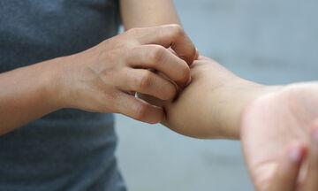 Σοβαρές παθήσεις που εκδηλώνονται με δερματικά συμπτώματα (εικόνες)