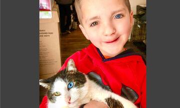 9χρονος θύμα bullying με ετεροχρωμία & λαγόχειλο υιοθέτησε ομοιοπαθή γάτα