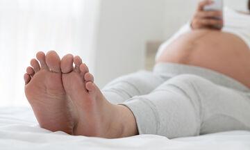 Πρησμένοι αστράγαλοι στην εγκυμοσύνη: Αίτια και αντιμετώπιση