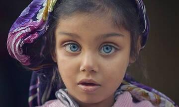 Αυτές οι φωτογραφίες παιδιών με ανοιχτόχρωμα μάτια είναι πολύ ξεχωριστές