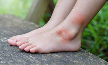 Αλλεργία στο τσίμπημα κουνουπιού: Τα ανησυχητικά συμπτώματα (εικόνες)