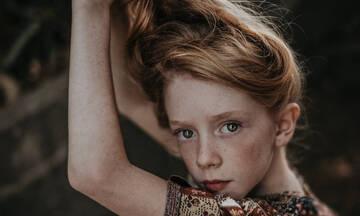 Τριχόπτωση στα παιδιά: Οι πιο συχνές αιτίες απώλειας των μαλλιών